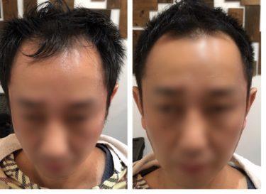 ハゲメン!ハゲてもイケてる髪型。ベジータモヒ01