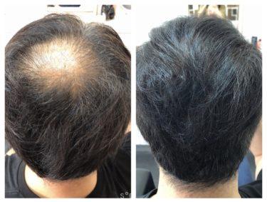 ハゲメン!ハゲてもイケてる髪型。ソフトバックAGA治療中。