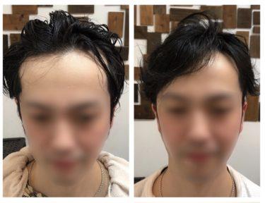 ハゲメン!ハゲてもイケてる髪型。ソフトベジータ02