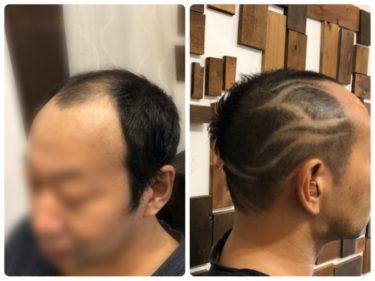 ハゲメン!ハゲてもイケてる髪型。バリアート!